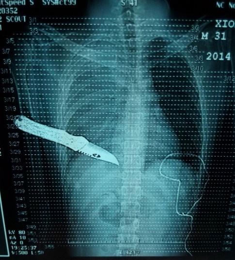 لو یانگ 31 ساله در ناچانگ چین که به رغم اصابت چاقو به قلبش، جان سالم به در برد.