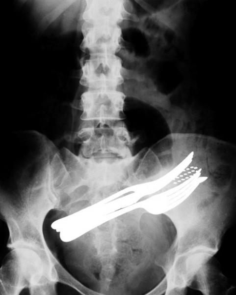 عکس اشعه ایکس از شکم یک بیمار که دو عدد چنگال، یک مداد و یک مسواک را بلعیده است