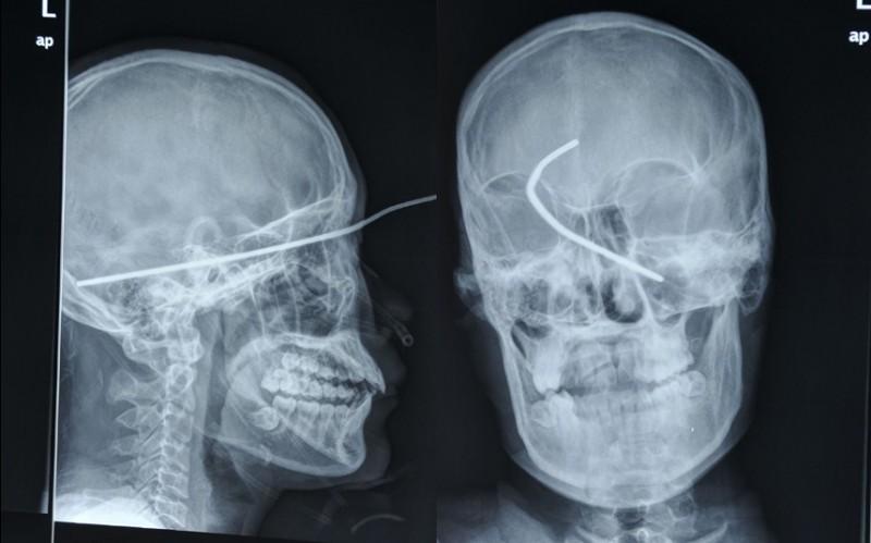 عکس رادیولوژی اشعه ایکس که میلهای فرو رفته در سر آقای ها وی در گانگزهو چین را نشان میدهد