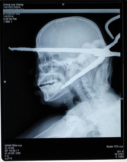 یک عکس رادیولوژی وحشتناک