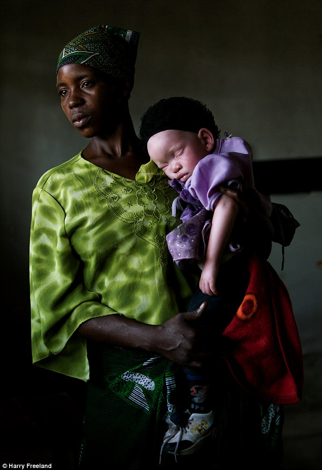 ۲۴F51E7A00000578-2922243-Tanzania_s_albino_population_is_being_hunted_down_by_people_who_-m-1_1422286013831
