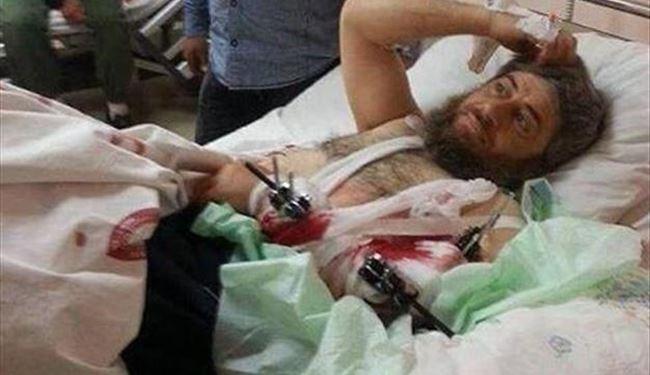 درمان یکی از سران داعش در بیمارستان ترکیهای